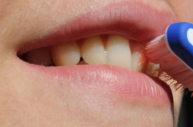 What causes gingivitis?